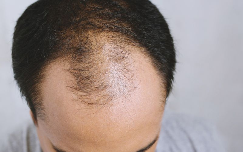 Can a Receding Hairline Stop Best Products for Frontal Hair Loss and Baldness