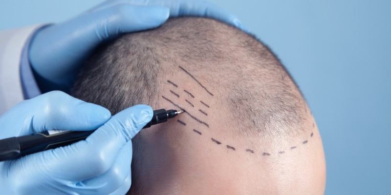 Hair transplant and scalp reduction - Best Hair Growth Products