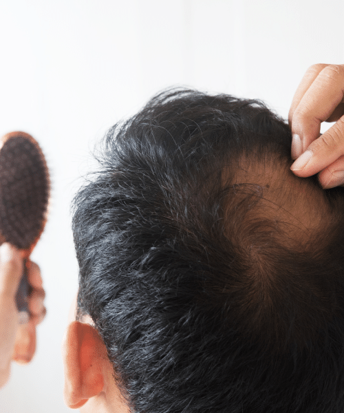 the-best-hair-growth-product-for-alopecia